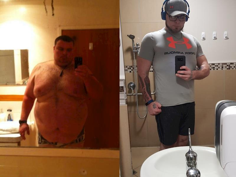 Loose Excess Skin Removal After Losing 100kg Givealittle